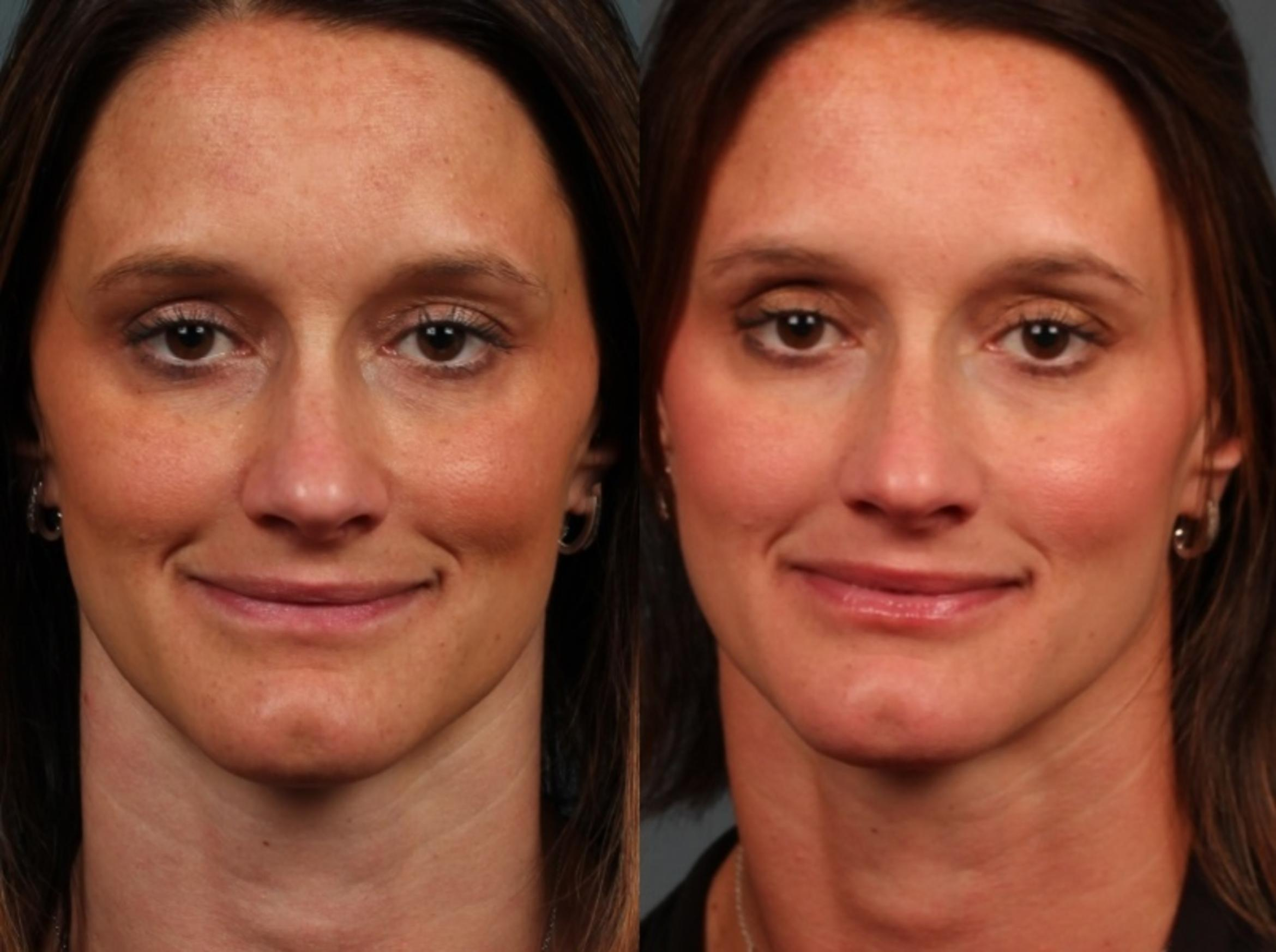 Advanced Medical Facials Case 677 Before & After Front | Louisville, KY | CaloSpa® Rejuvenation Center