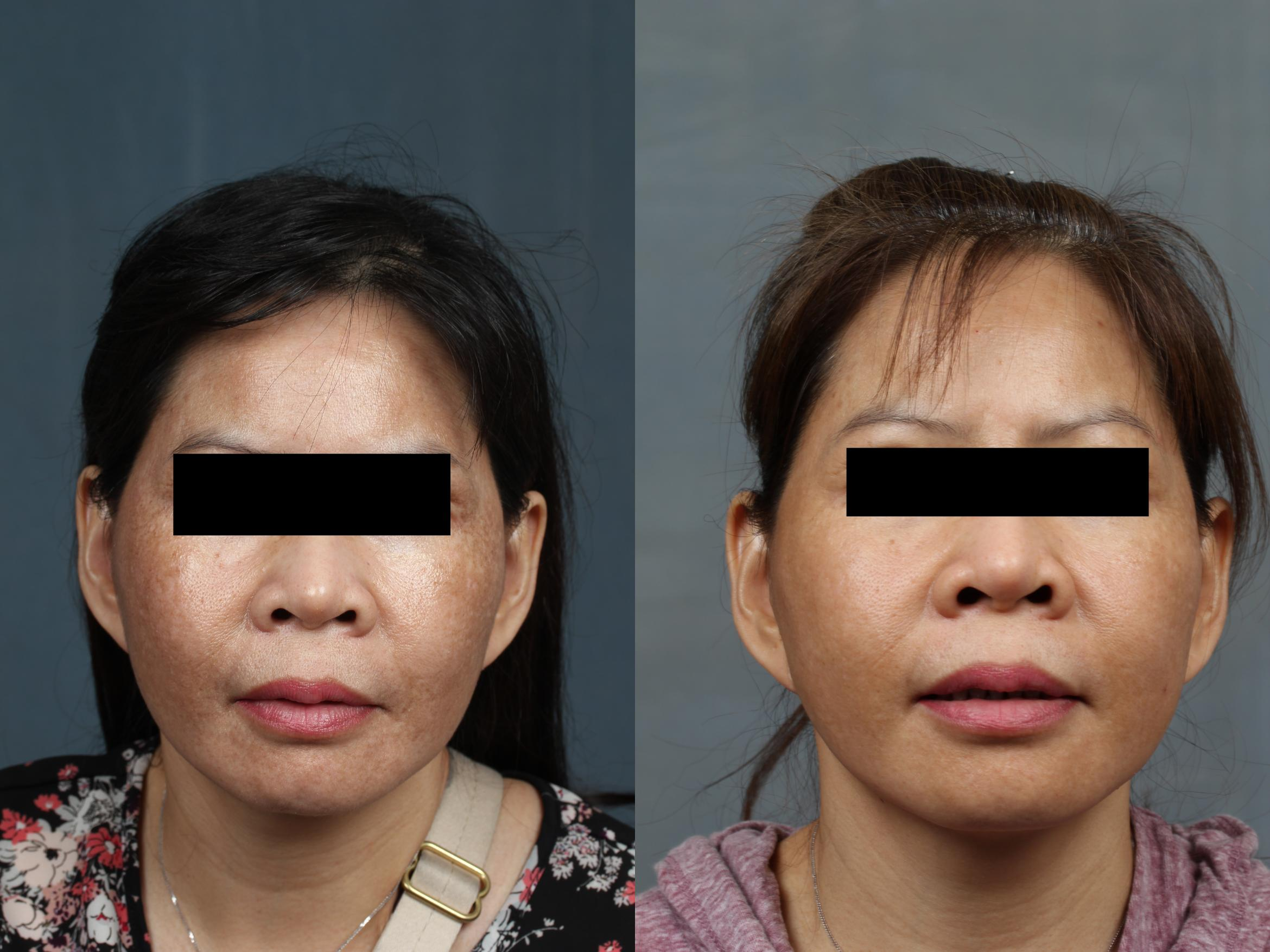 Advanced Medical Facials Case 678 Before & After Front | Louisville, KY | CaloSpa® Rejuvenation Center