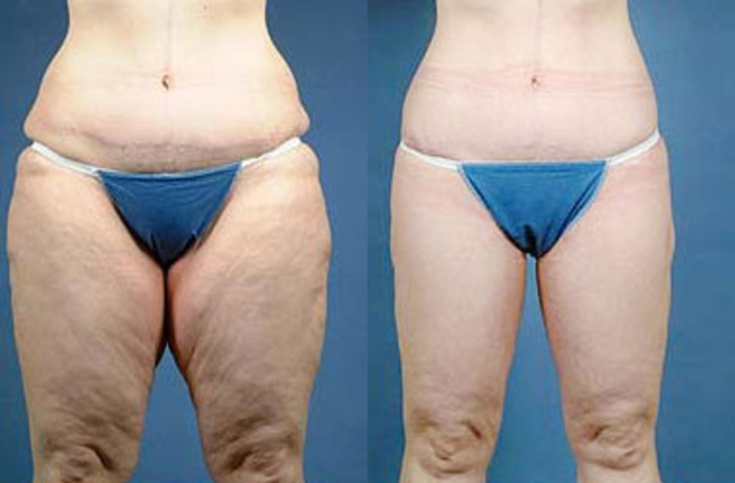 Body/Thigh Lift Case 137 Before & After View #1 | Louisville & Lexington, KY | CaloAesthetics® Plastic Surgery Center