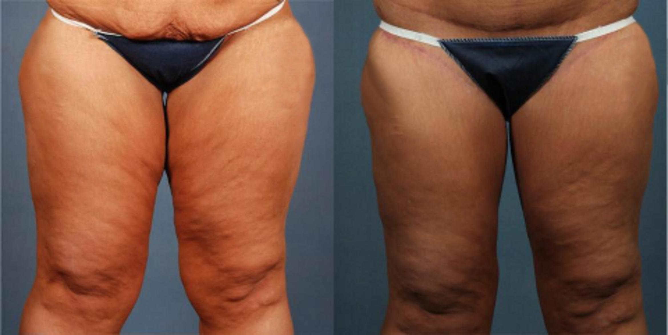 Body/Thigh Lift Case 247 Before & After View #3 | Louisville & Lexington, KY | CaloAesthetics® Plastic Surgery Center