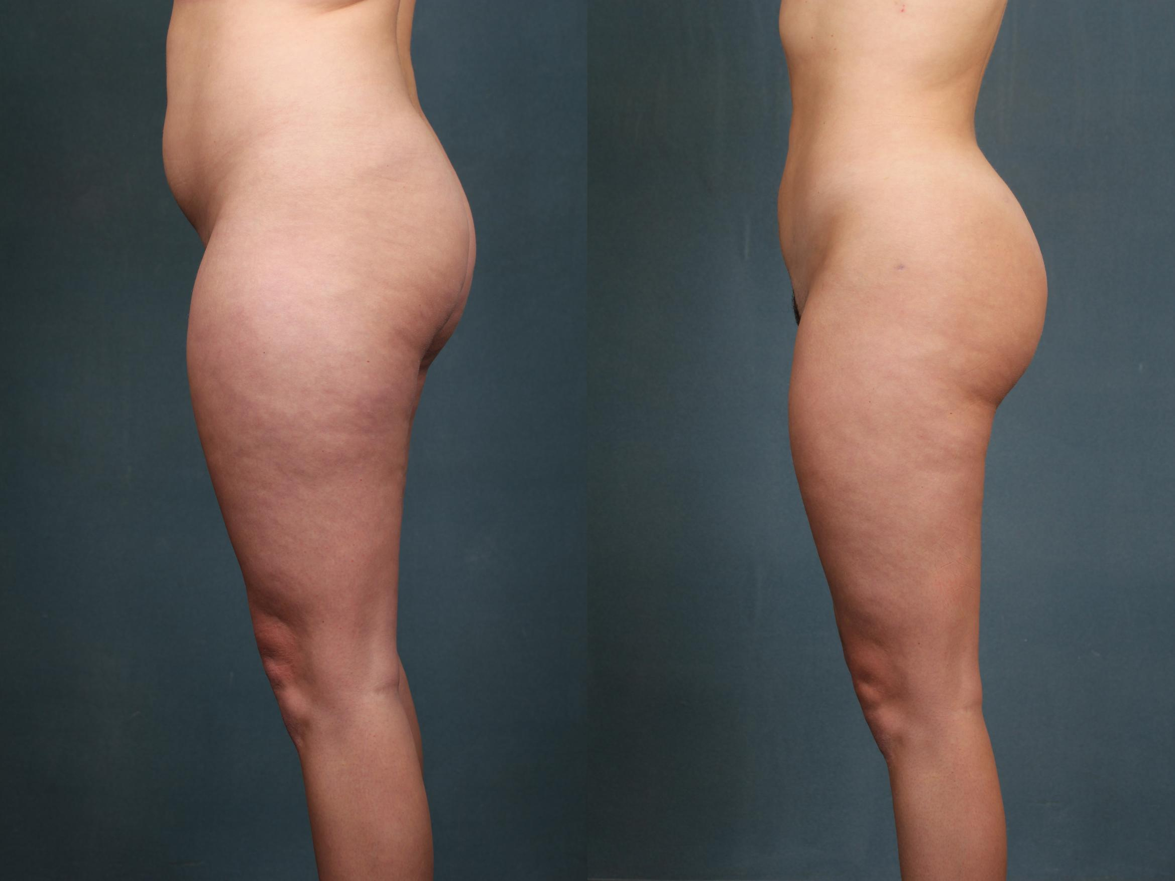 Brazilian Butt Lift Case 594 Before & After View #1 | Louisville & Lexington, KY | CaloAesthetics® Plastic Surgery Center