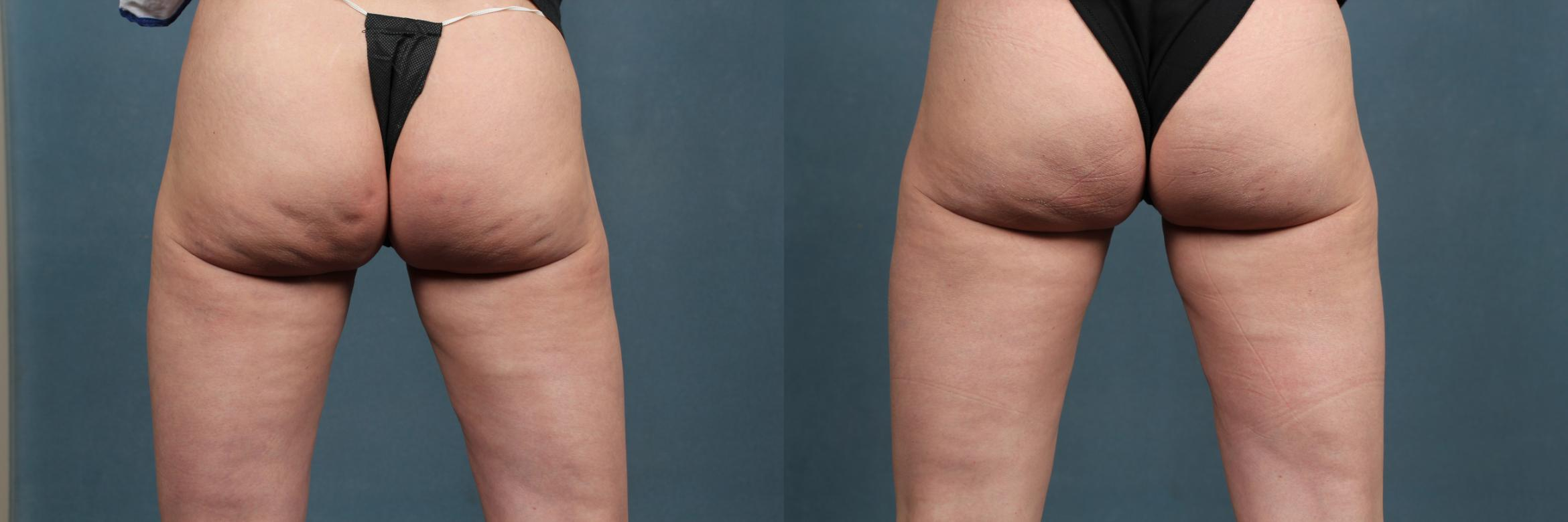 Cellulite Treatments Case 264 Before & After View #1 | Louisville, KY | CaloAesthetics® Plastic Surgery Center