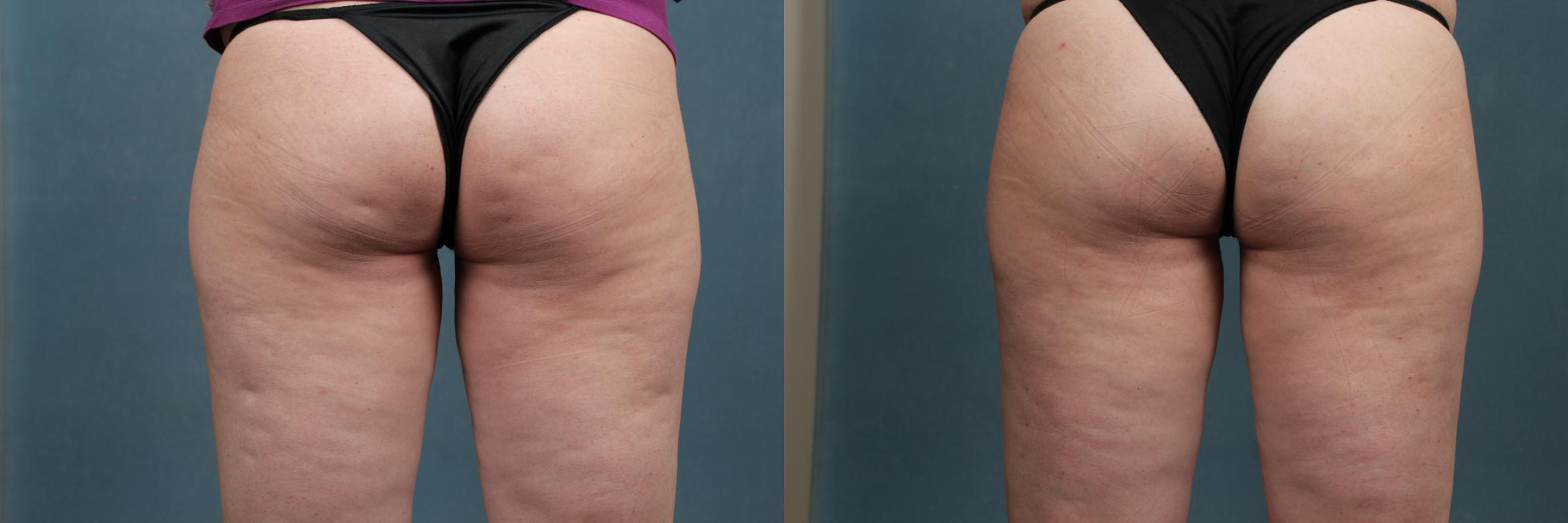 Cellulite Treatments Case 265 Before & After View #1 | Louisville, KY | CaloAesthetics® Plastic Surgery Center