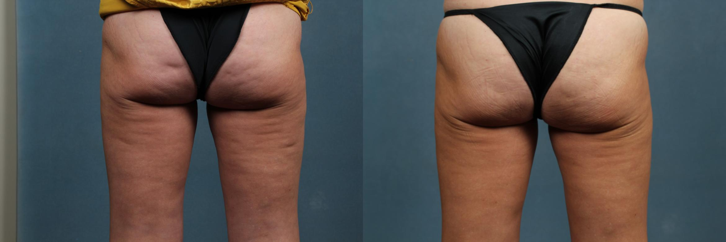 Cellulite Treatments Case 267 Before & After View #1 | Louisville, KY | CaloAesthetics® Plastic Surgery Center