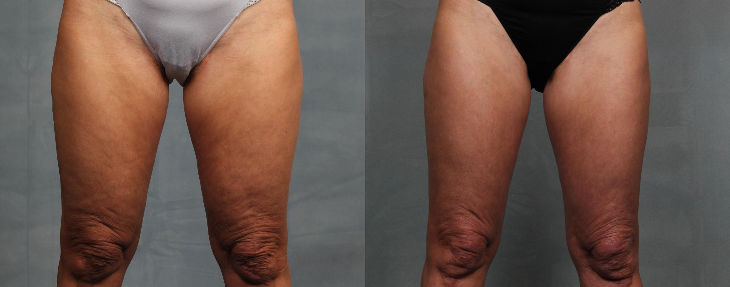 Cellulite Treatments Case 614 Before & After Front | Louisville & Lexington, KY | CaloAesthetics® Plastic Surgery Center
