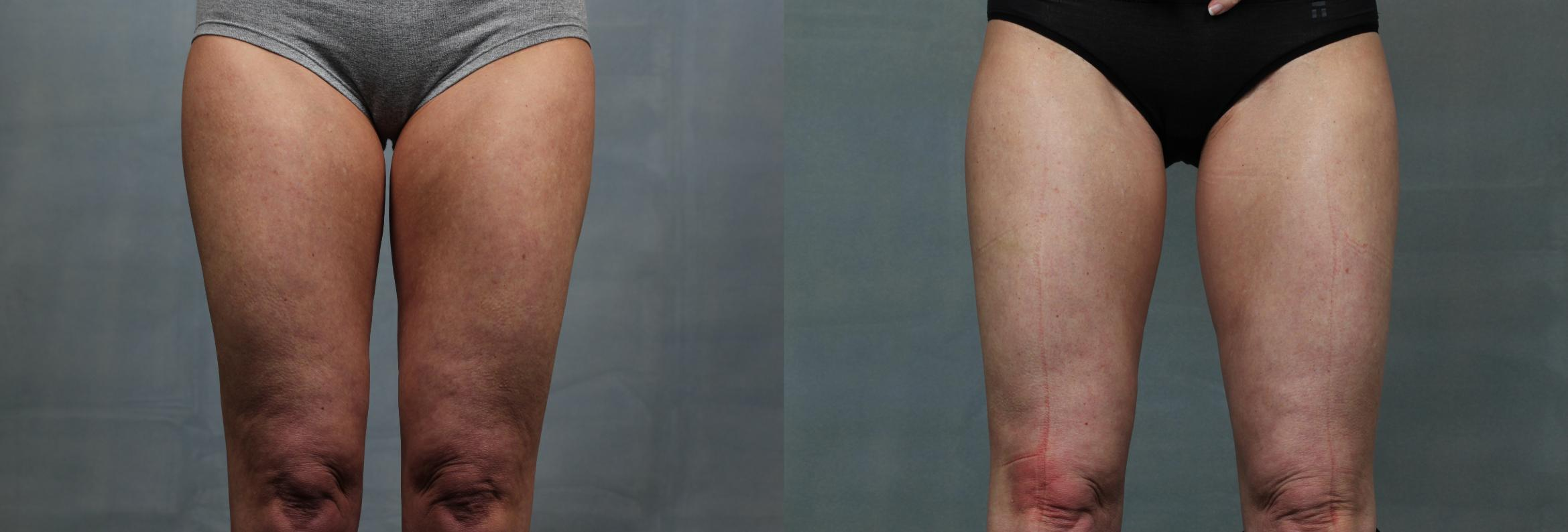 Cellulite Treatments Case 616 Before & After Front | Louisville & Lexington, KY | CaloAesthetics® Plastic Surgery Center