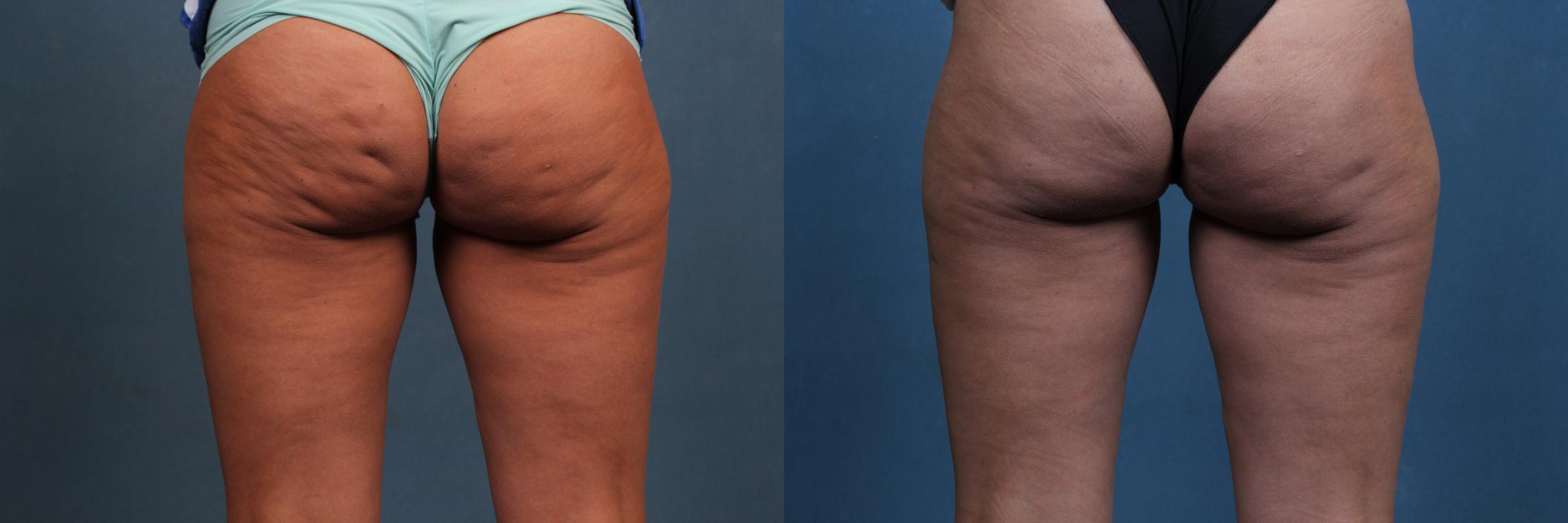 Cellulite Treatments Case 619 Before & After Back | Louisville & Lexington, KY | CaloAesthetics® Plastic Surgery Center