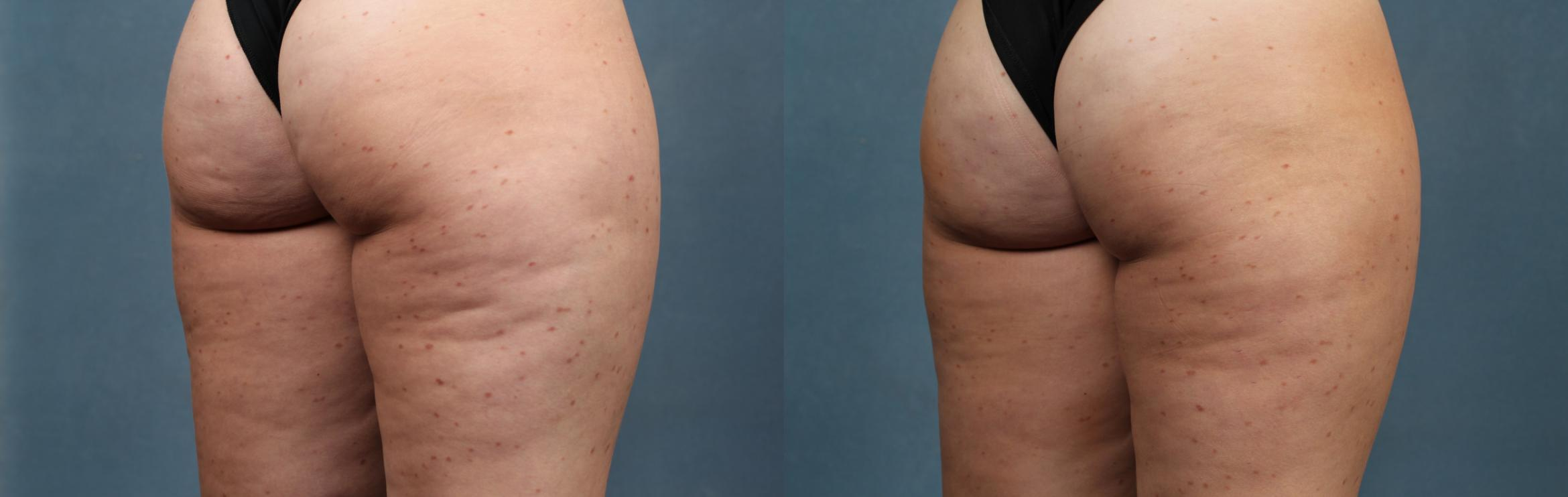 Cellulite Treatments Case 622 Before & After Right Oblique | Louisville, KY | CaloSpa® Rejuvenation Center