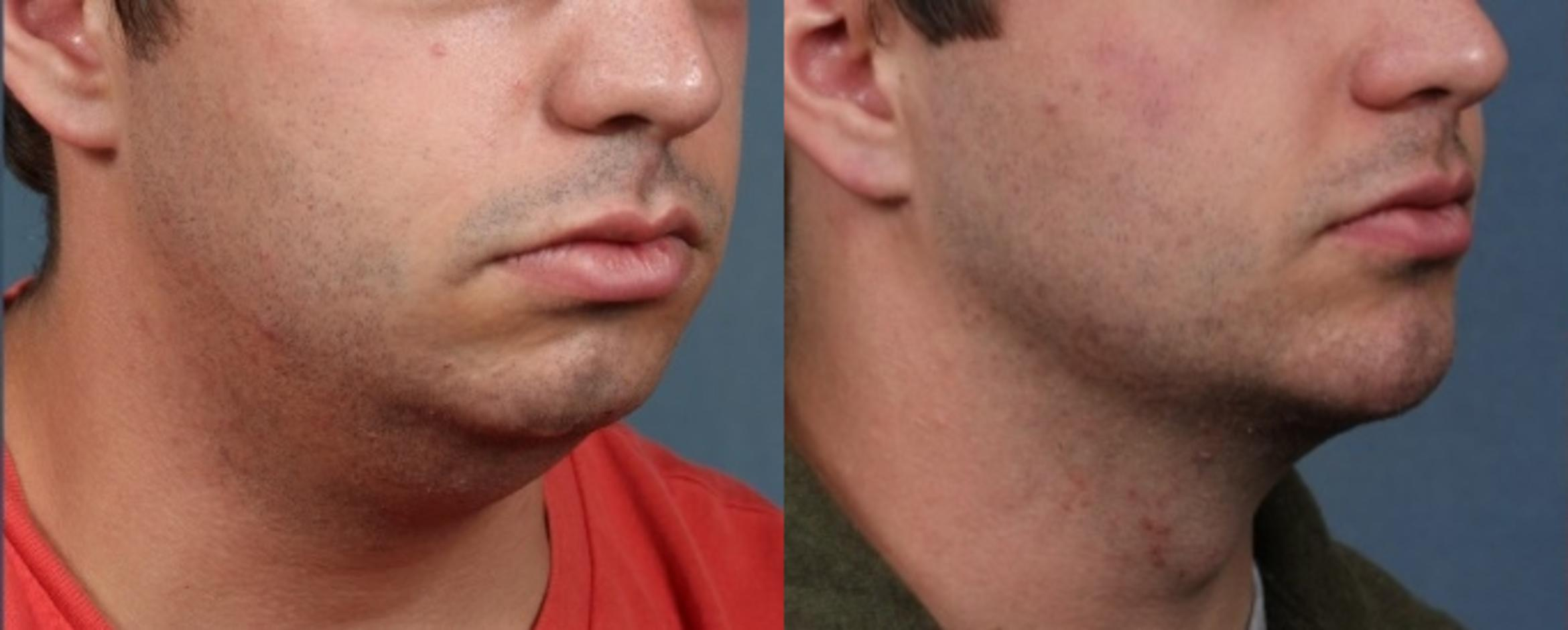 Chin Augmentation Case 723 Before & After Right Oblique | Louisville & Lexington, KY | CaloAesthetics® Plastic Surgery Center