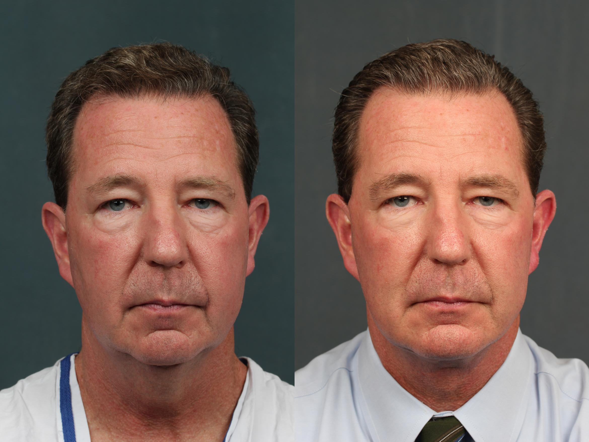 Chin Augmentation Case 730 Before & After Front | Louisville & Lexington, KY | CaloAesthetics® Plastic Surgery Center