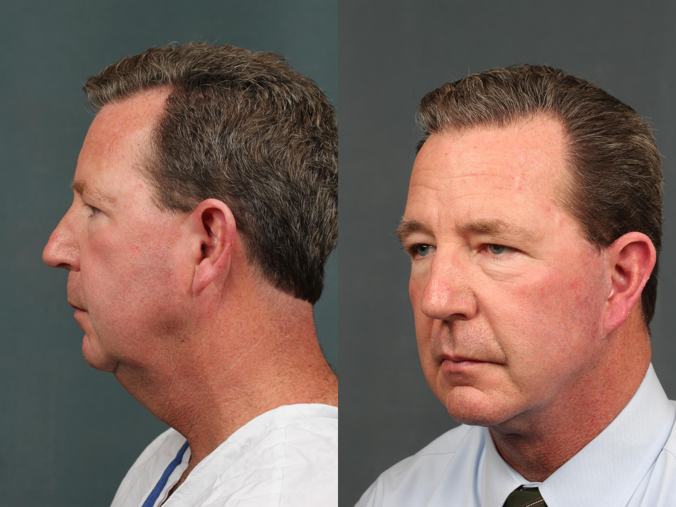 Chin Augmentation Case 730 Before & After Left Oblique | Louisville & Lexington, KY | CaloAesthetics® Plastic Surgery Center