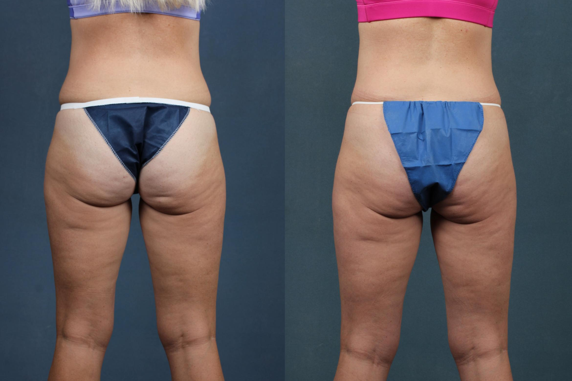 CoolSculpting Case 654 Before & After Back | Louisville, KY | CaloSpa® Rejuvenation Center