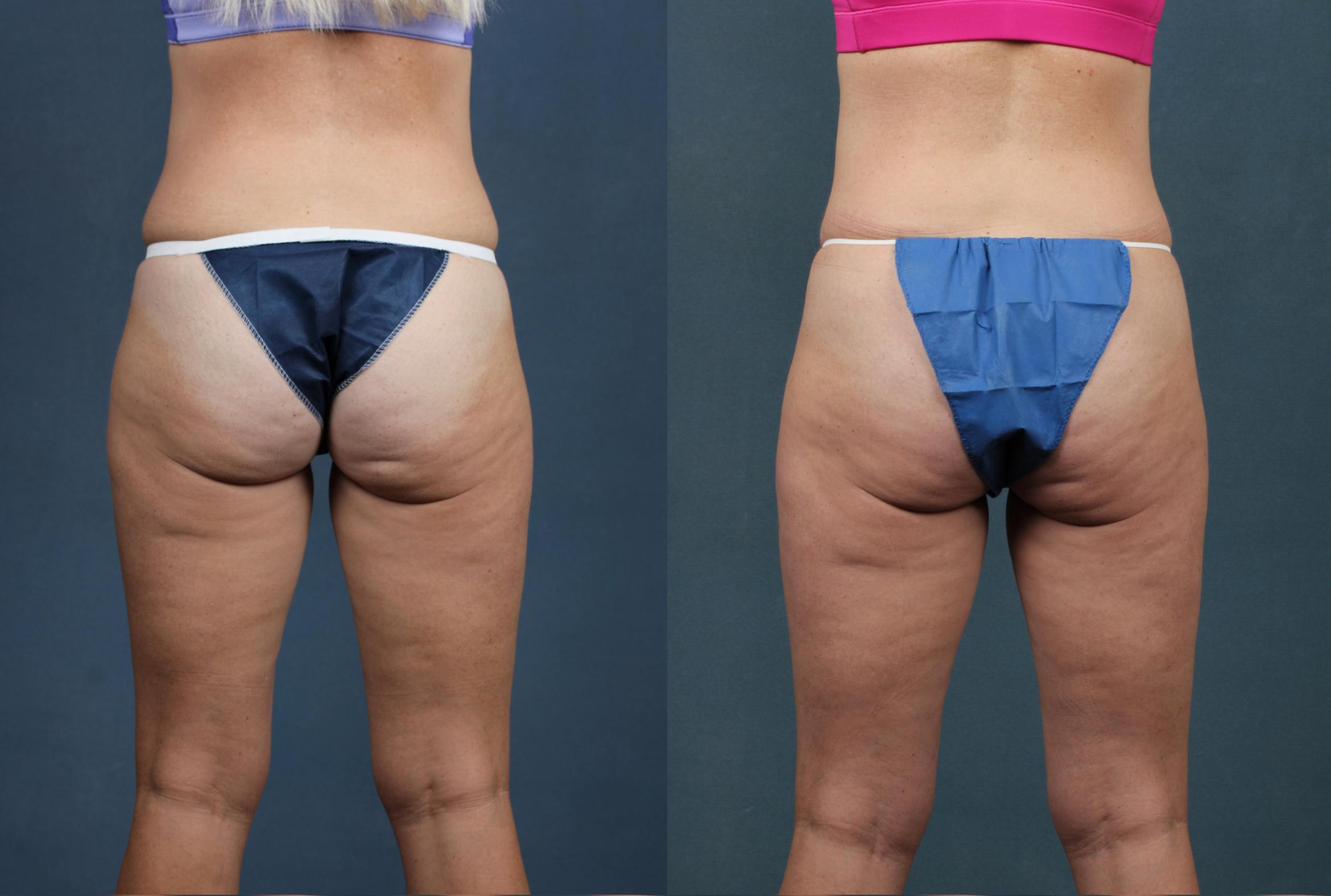 CoolSculpting Case 705 Before & After Back | Louisville, KY | CaloSpa® Rejuvenation Center