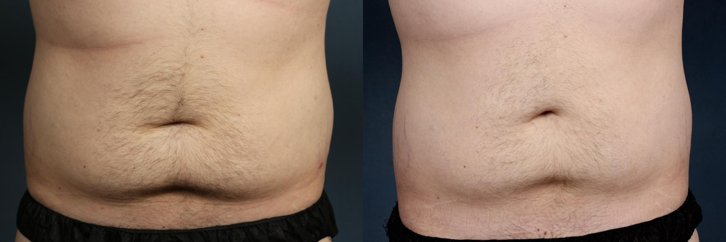 CoolSculpting Case 709 Before & After Front | Louisville, KY | CaloSpa® Rejuvenation Center