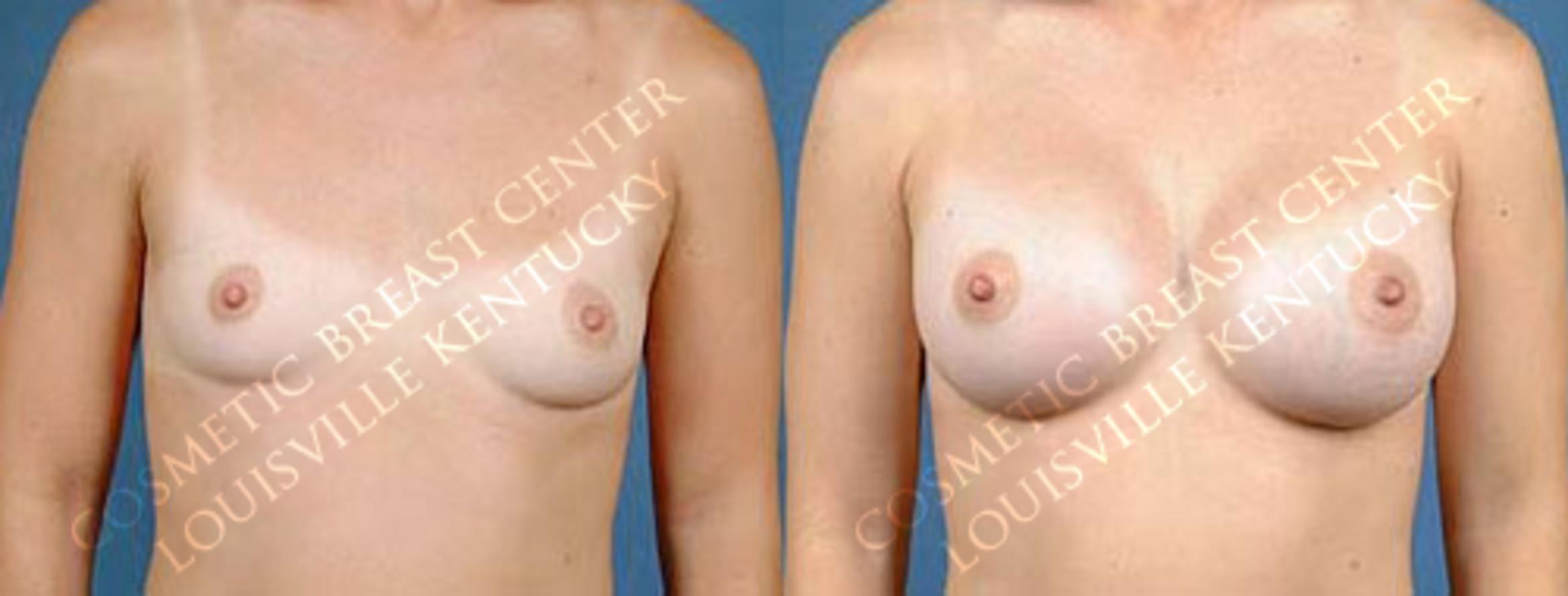 Enlargement - Saline Case 3 Before & After View #1 | Louisville & Lexington, KY | CaloAesthetics® Plastic Surgery Center