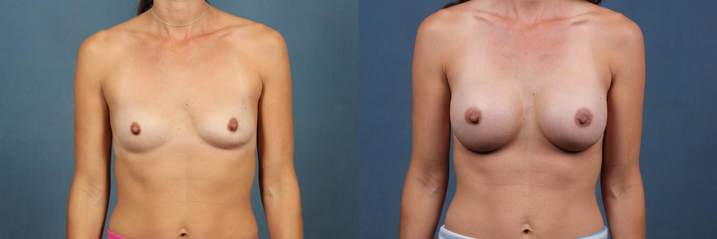 Enlargement - Silicone Case 323 Before & After View #1 | Louisville, KY | CaloAesthetics® Plastic Surgery Center