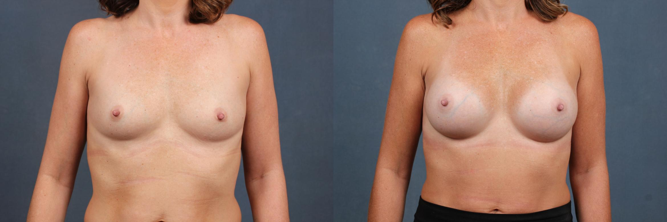 Enlargement - Silicone Case 348 Before & After View #1 | Louisville & Lexington, KY | CaloAesthetics® Plastic Surgery Center