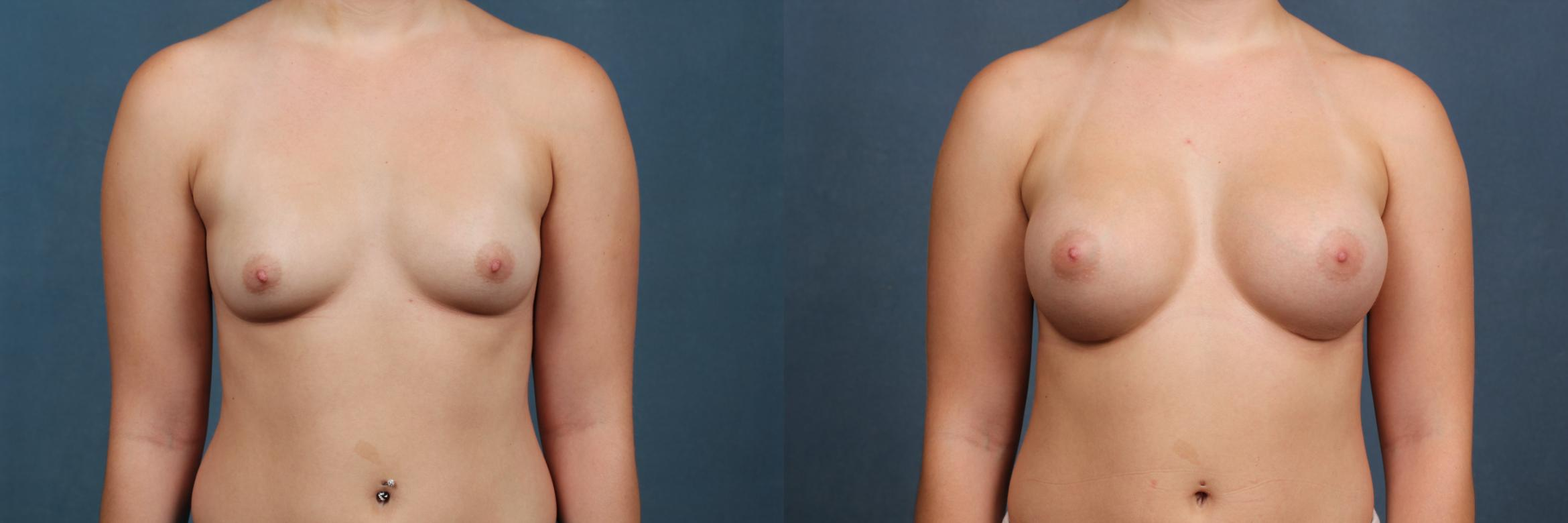 Enlargement - Silicone Case 352 Before & After View #1 | Louisville, KY | CaloAesthetics® Plastic Surgery Center