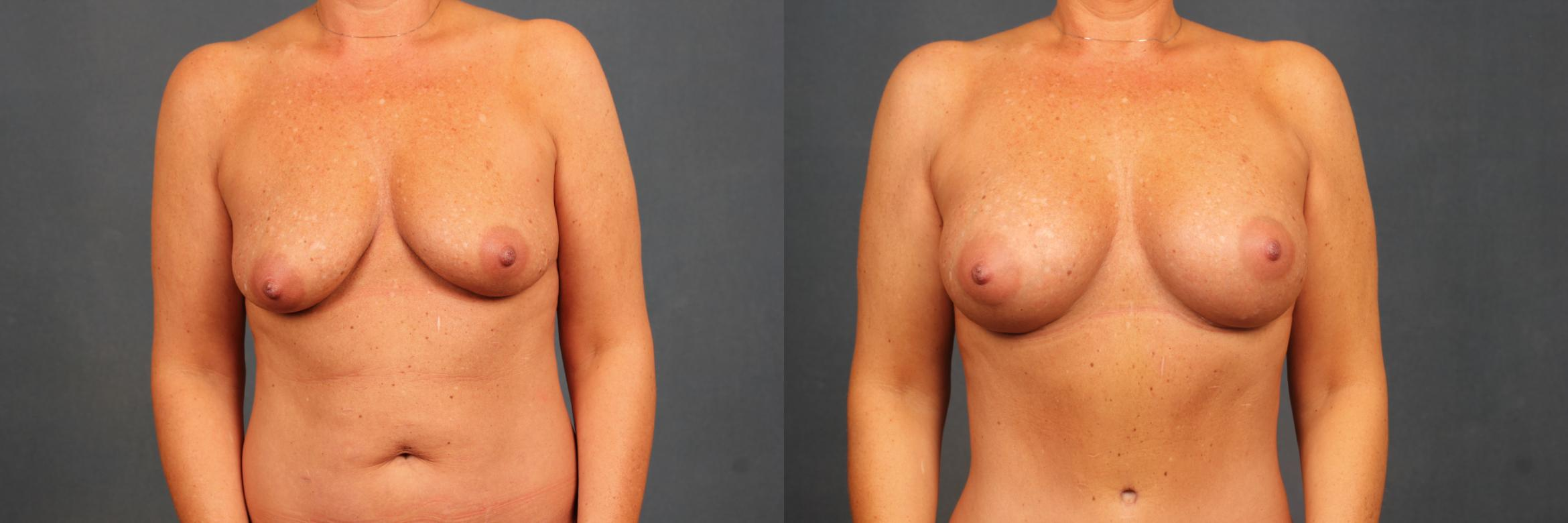 Enlargement - Silicone Case 383 Before & After View #1 | Louisville, KY | CaloAesthetics® Plastic Surgery Center