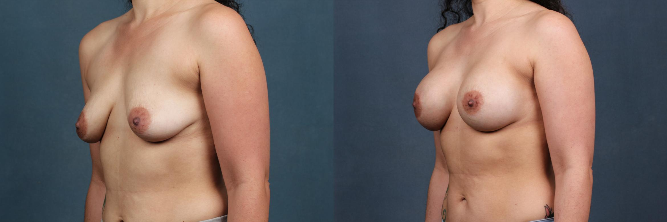 Enlargement - Silicone Case 387 Before & After View #2 | Louisville, KY | CaloAesthetics® Plastic Surgery Center