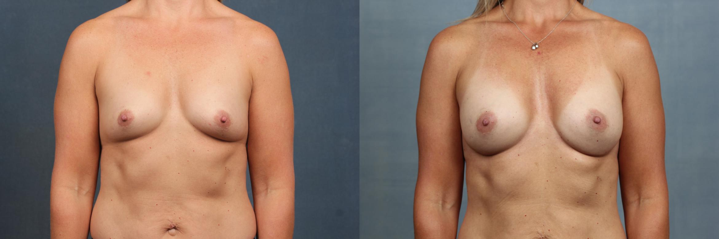Enlargement - Silicone Case 589 Before & After View #1 | Louisville & Lexington, KY | CaloAesthetics® Plastic Surgery Center