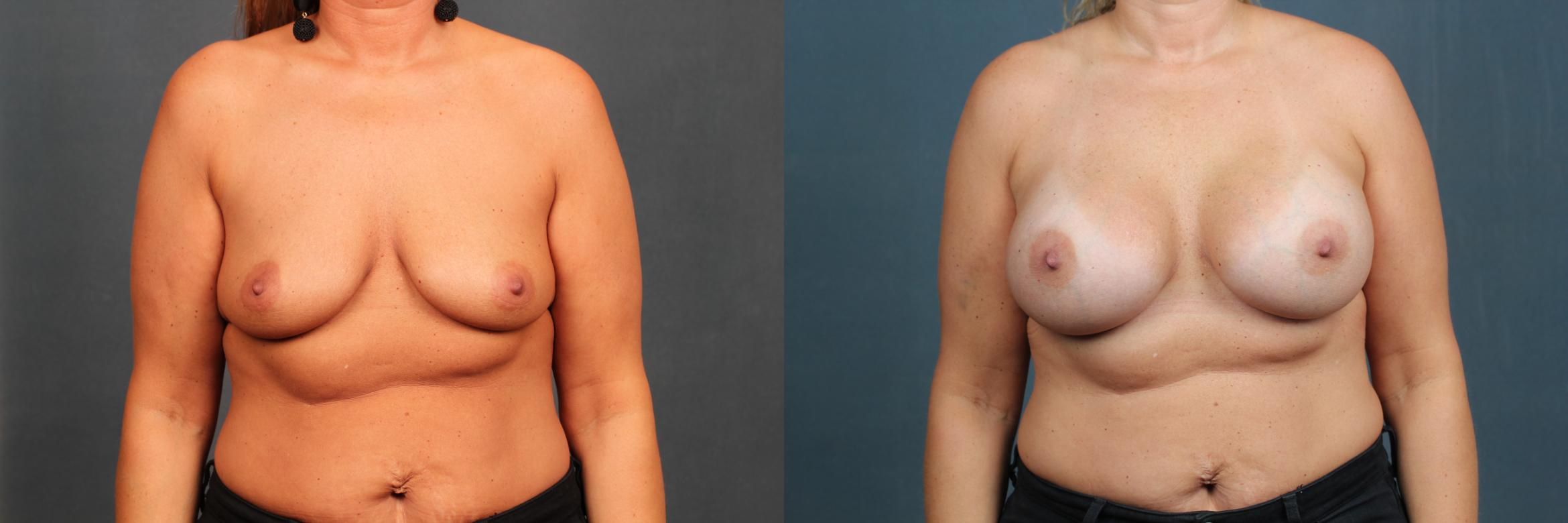 Enlargement - Silicone Case 591 Before & After View #1 | Louisville, KY | CaloAesthetics® Plastic Surgery Center