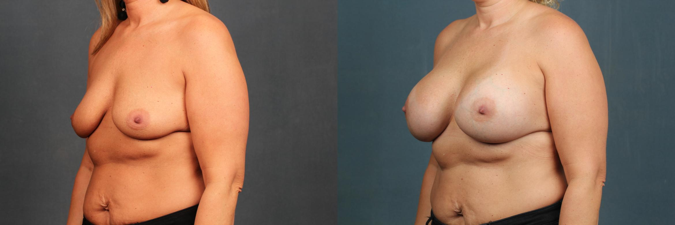 Enlargement - Silicone Case 591 Before & After View #2 | Louisville, KY | CaloAesthetics® Plastic Surgery Center