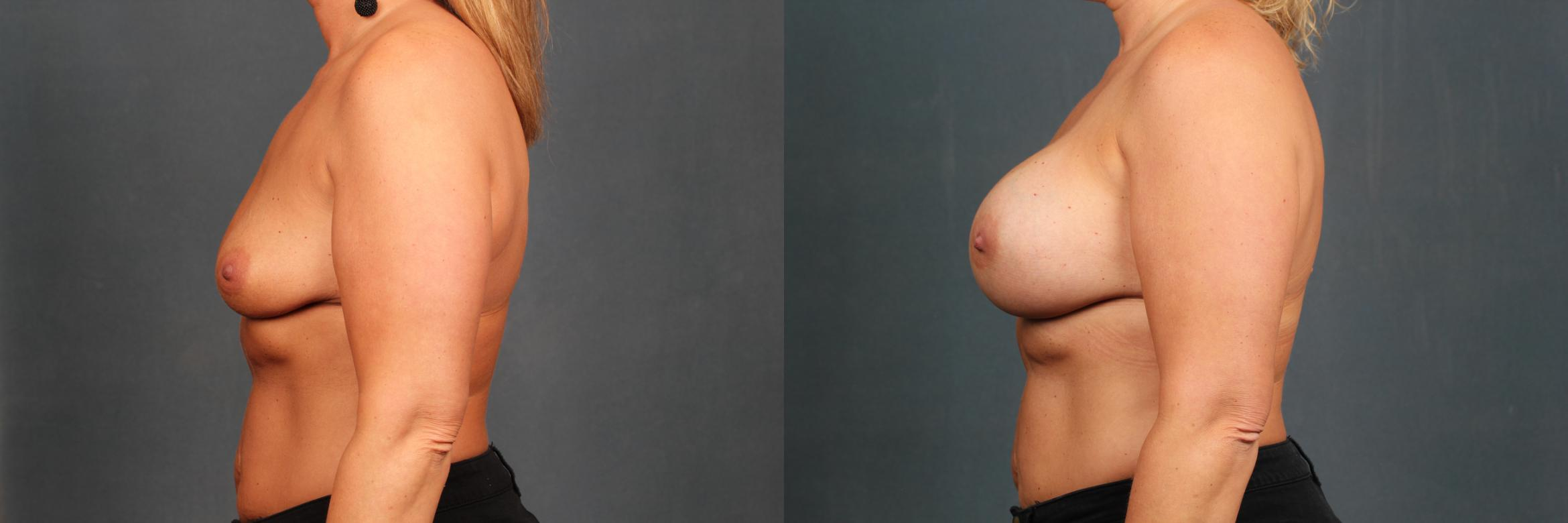 Enlargement - Silicone Case 591 Before & After View #3 | Louisville, KY | CaloAesthetics® Plastic Surgery Center