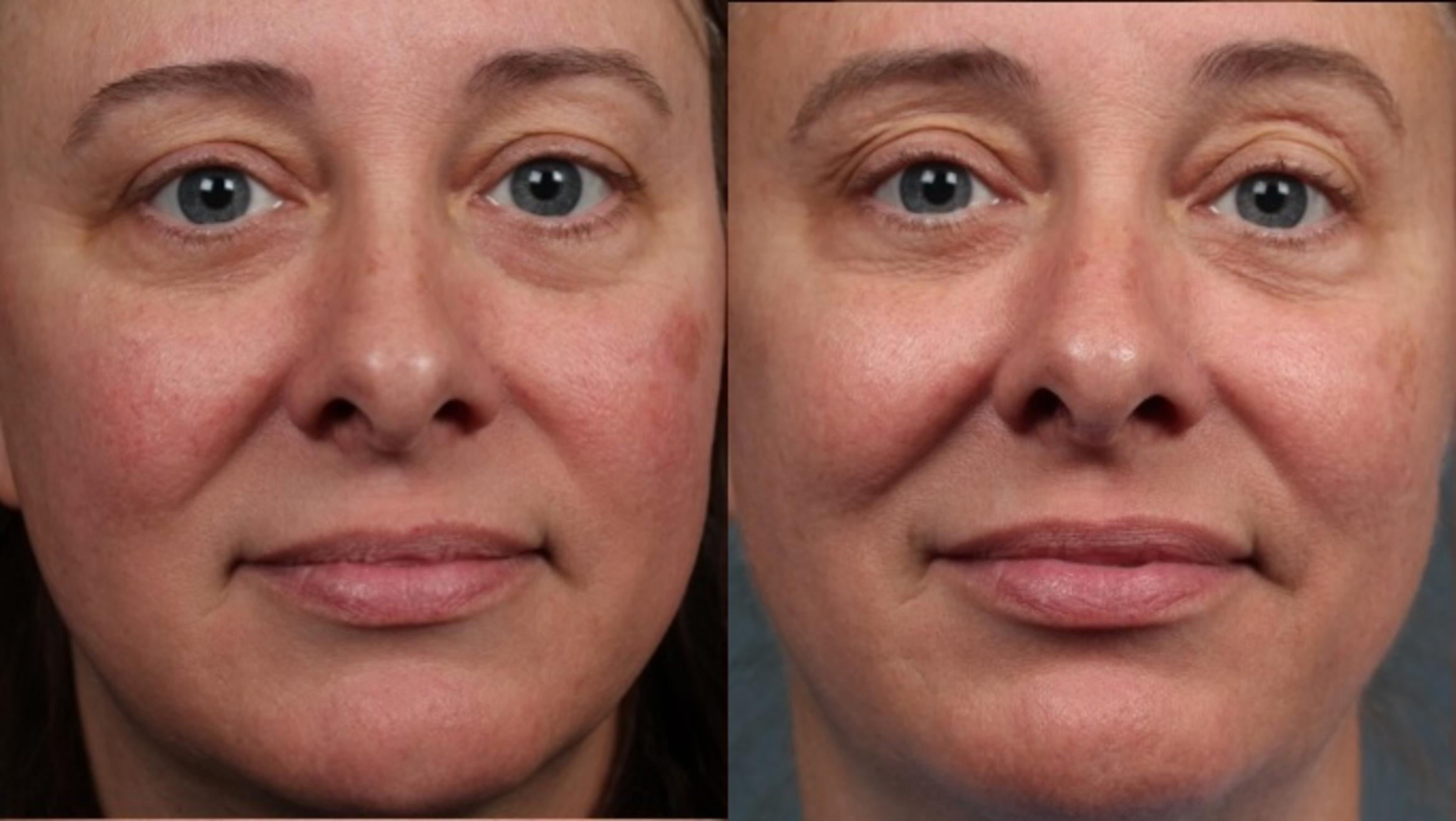 Excel V Laser Treatment Case 685 Before & After Front | Louisville & Lexington, KY | CaloAesthetics® Plastic Surgery Center