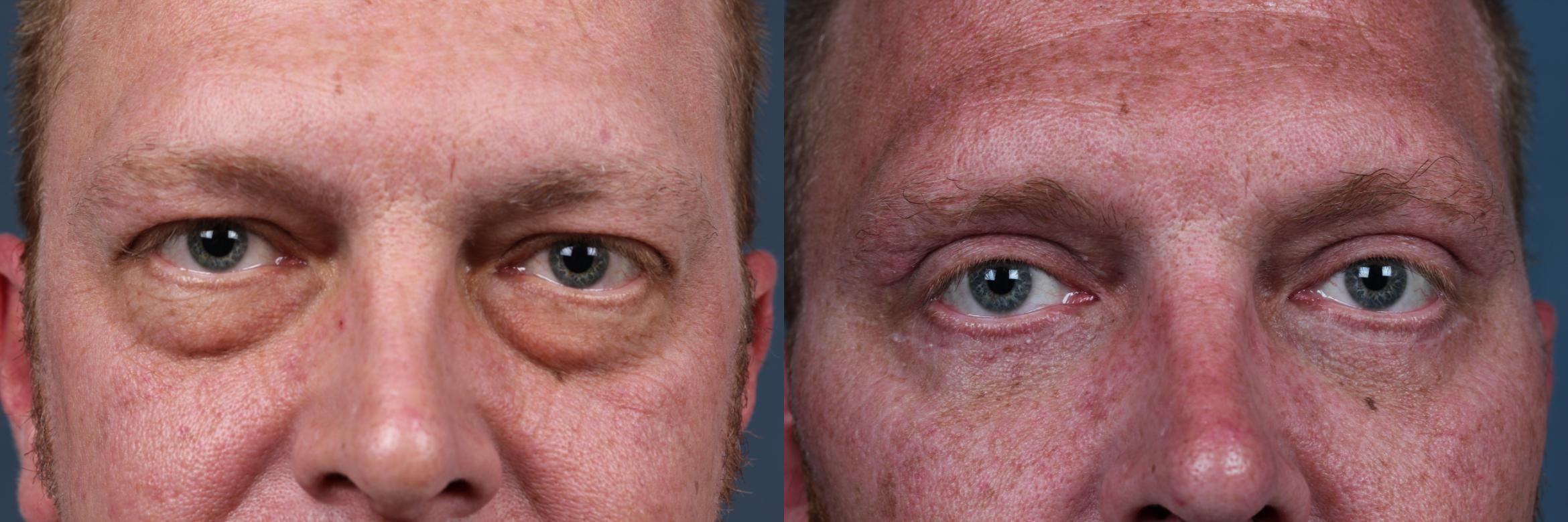 Eyelid Surgery Case 717 Before & After Front | Louisville & Lexington, KY | CaloAesthetics® Plastic Surgery Center