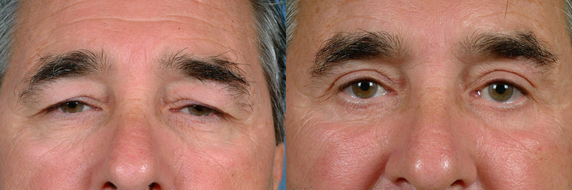 Eyelid Surgery Case 720 Before & After Front | Louisville, KY | CaloAesthetics® Plastic Surgery Center