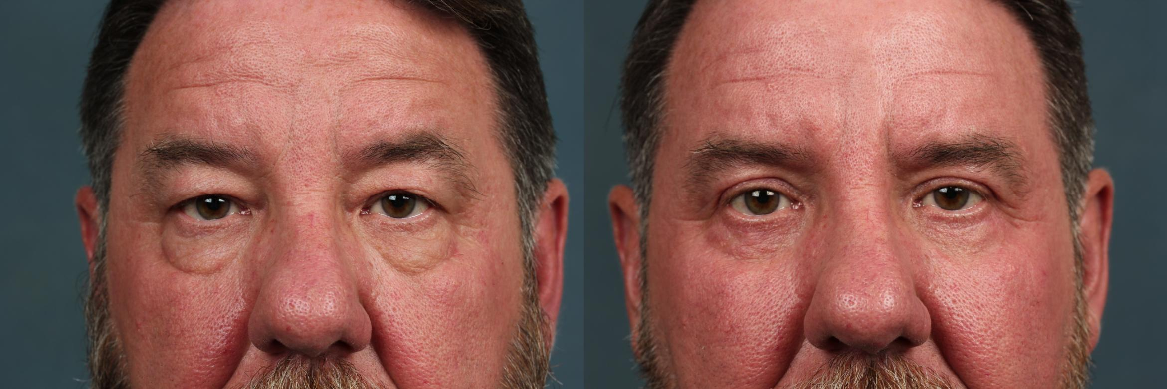 Eyelid Surgery Case 728 Before & After Front | Louisville, KY | CaloAesthetics® Plastic Surgery Center