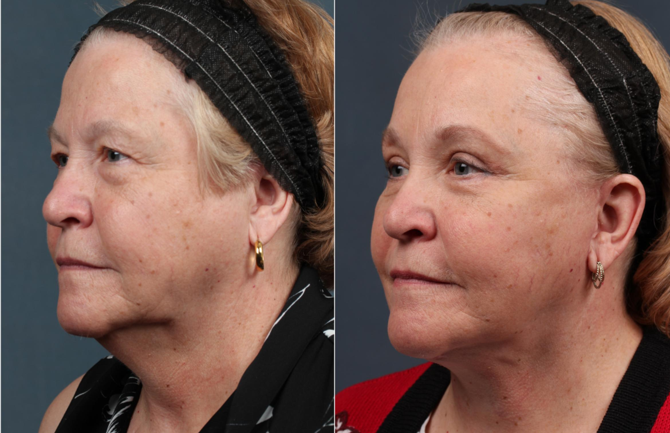 Facelift Case 282 Before & After View #1 | Louisville & Lexington, KY | CaloAesthetics® Plastic Surgery Center