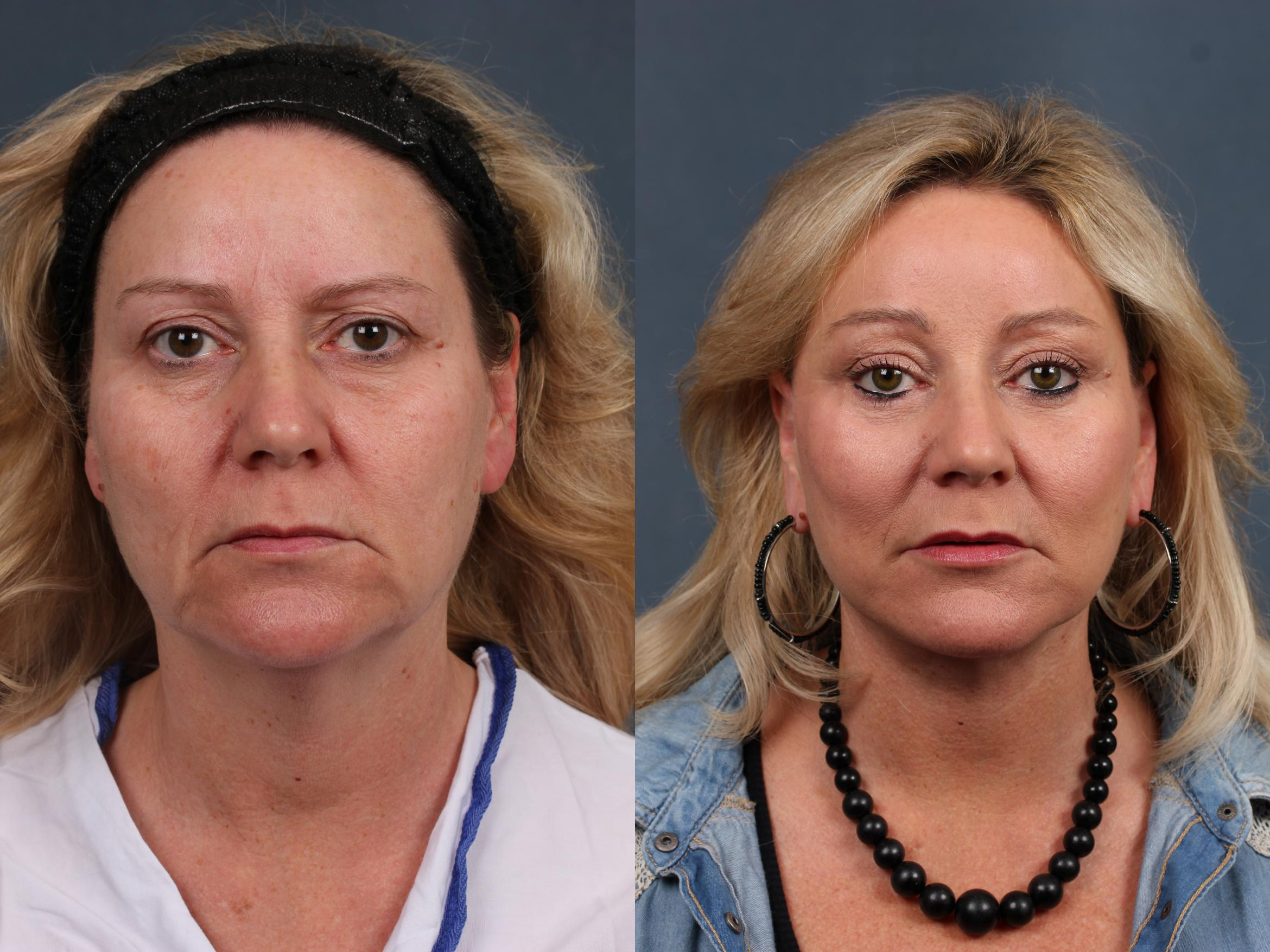 Facelift Case 506 Before & After View #1 | Louisville & Lexington, KY | CaloAesthetics® Plastic Surgery Center