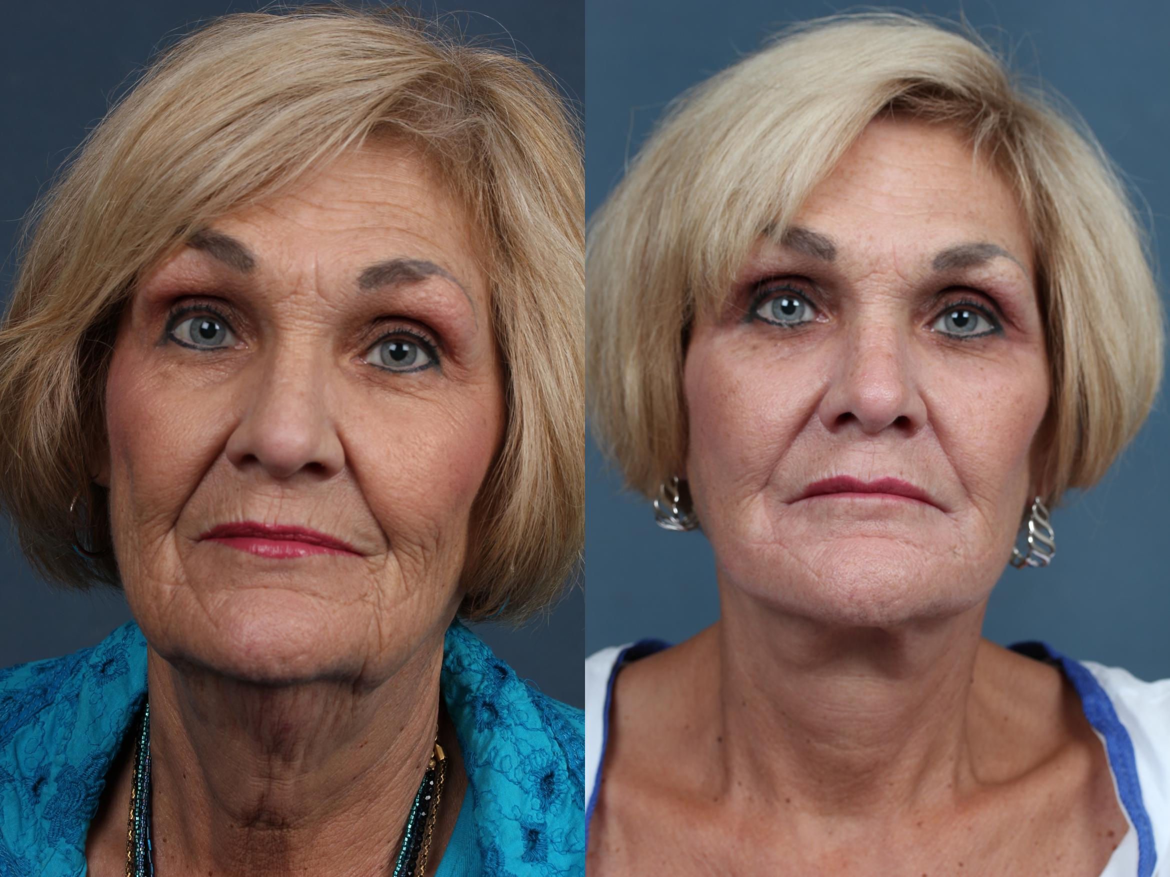 Facelift Case 510 Before & After View #1 | Louisville & Lexington, KY | CaloAesthetics® Plastic Surgery Center