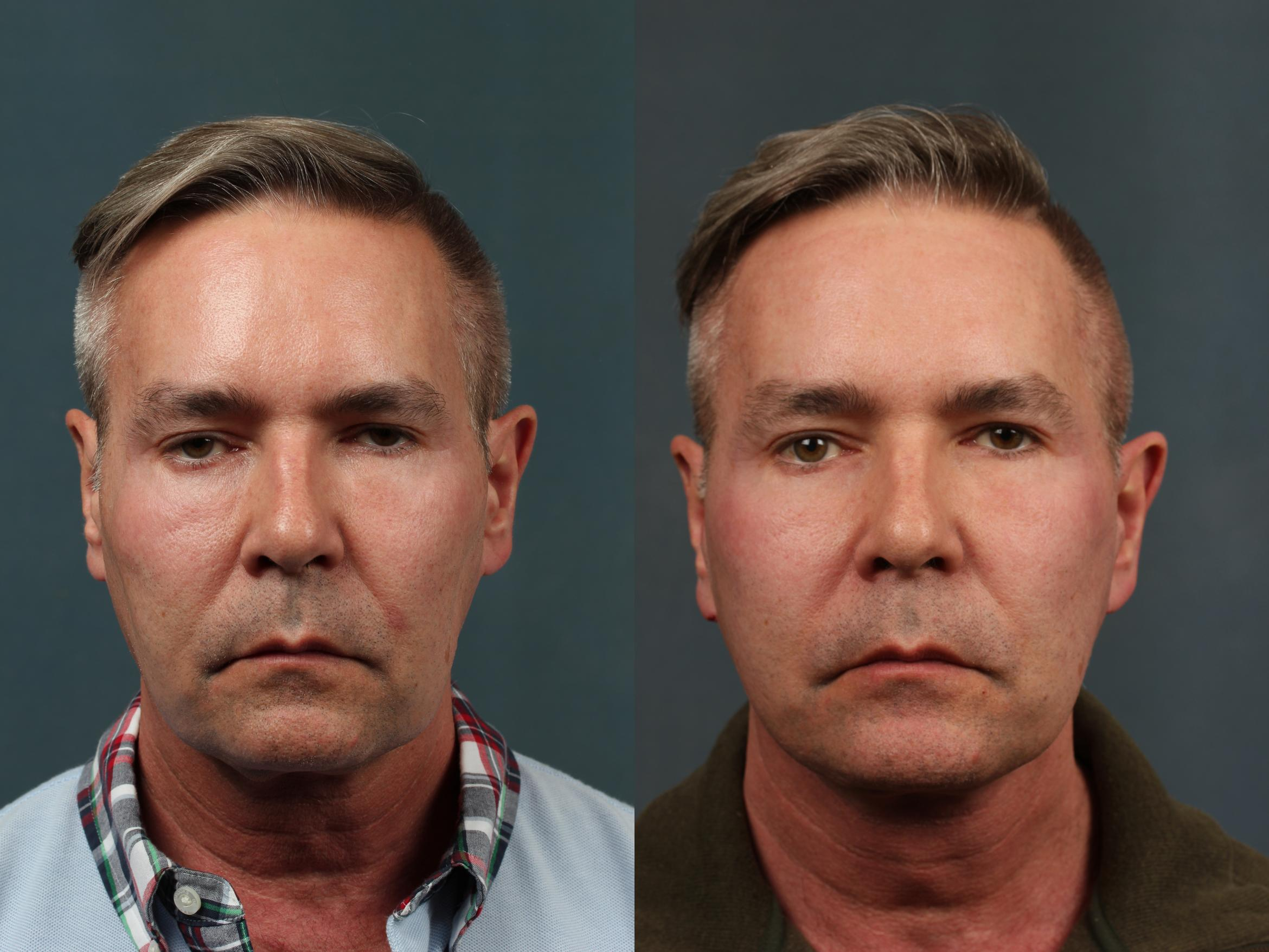 Facelift Case 714 Before & After Front | Louisville & Lexington, KY | CaloAesthetics® Plastic Surgery Center