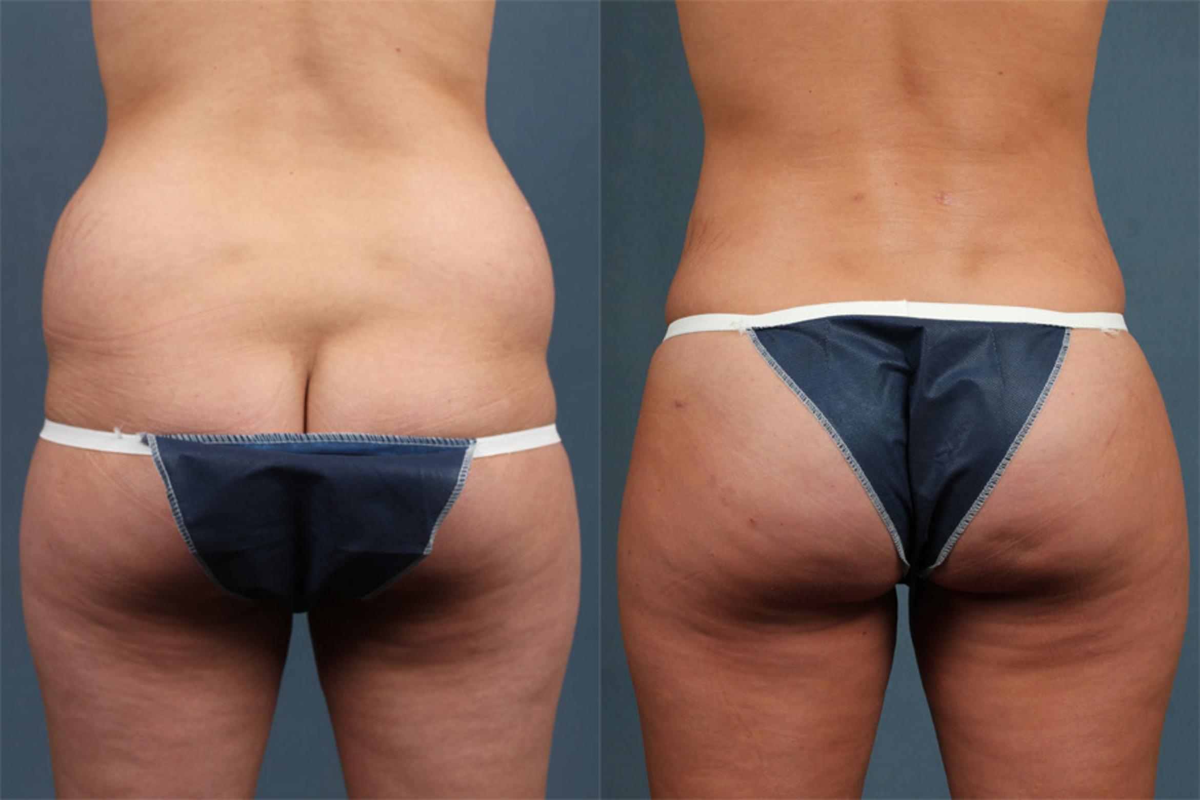 Brazilian Butt Lift Case 252 Before & After View #1 | Louisville & Lexington, KY | CaloAesthetics® Plastic Surgery Center