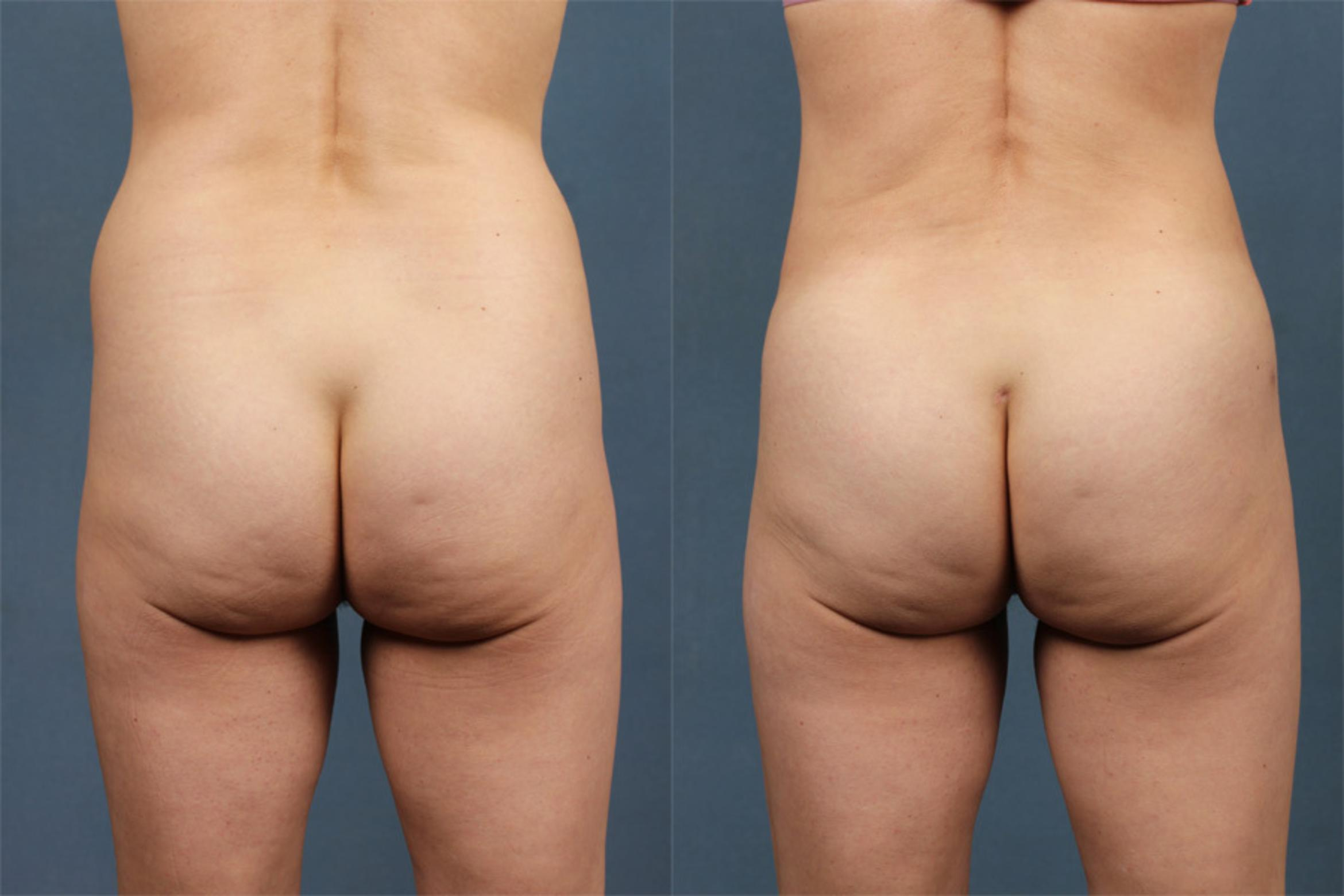 Brazilian Butt Lift Case 253 Before & After View #1 | Louisville & Lexington, KY | CaloAesthetics® Plastic Surgery Center