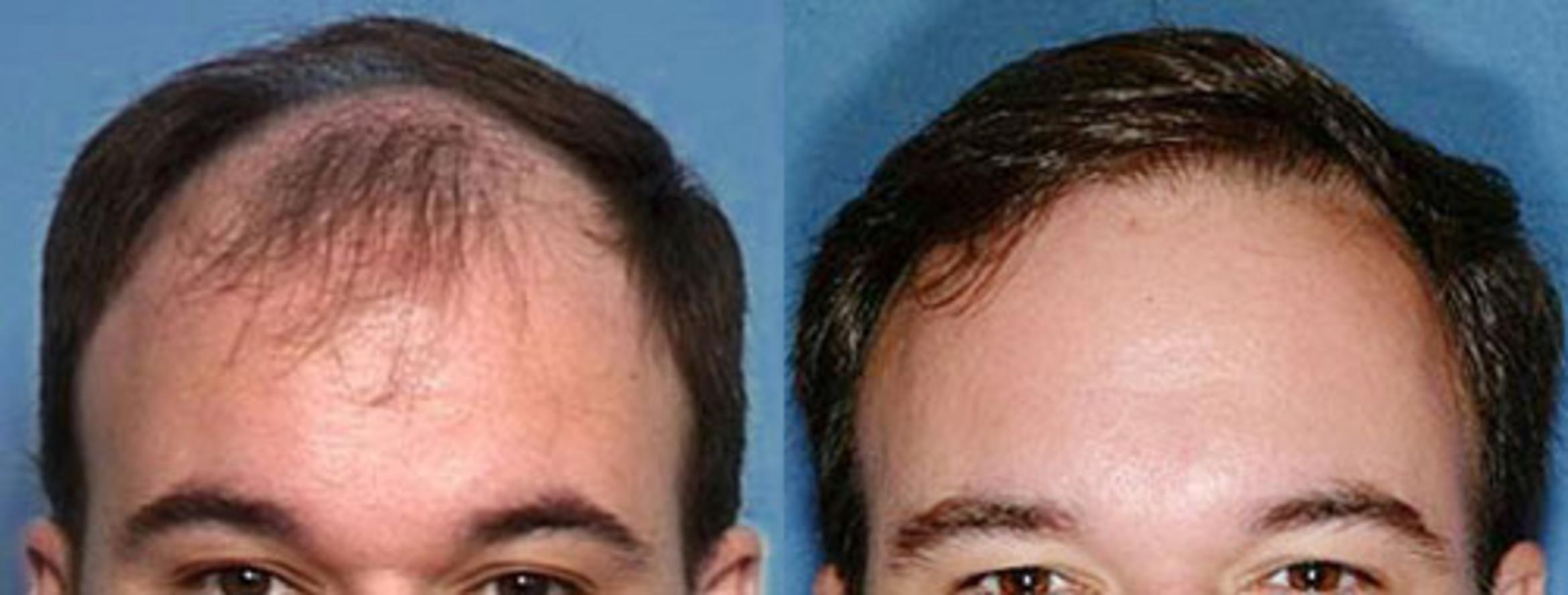 Hair Transplant Case 104 Before & After View #1 | Louisville, KY | CaloAesthetics® Plastic Surgery Center