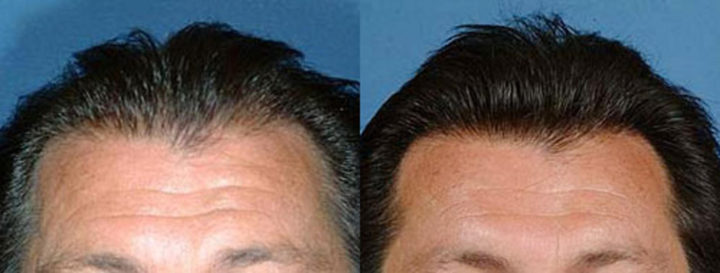Hair Transplant Case 105 Before & After View #1 | Louisville, KY | CaloAesthetics® Plastic Surgery Center