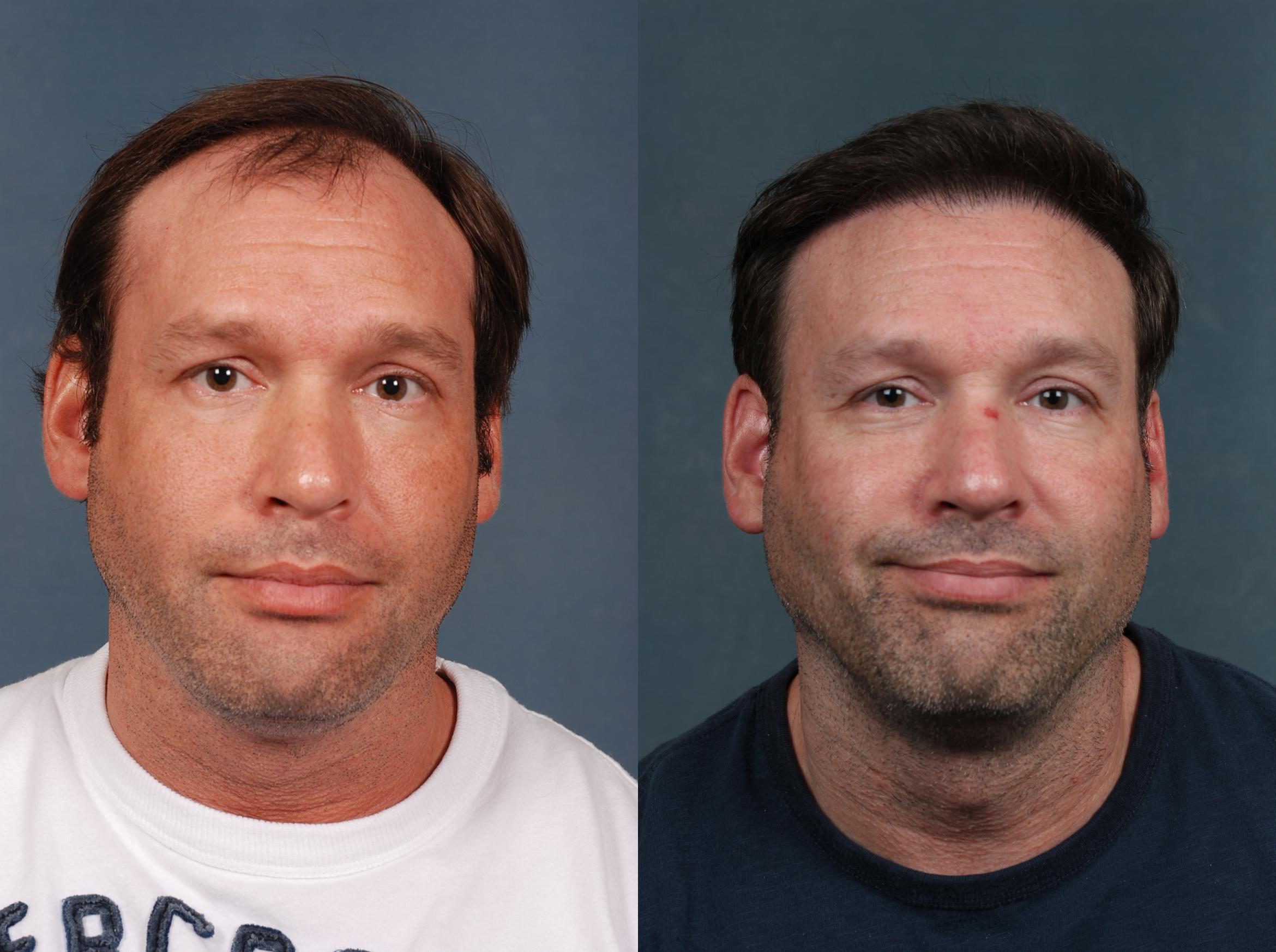 Hair Transplant Case 263 Before & After View #1 | Louisville, KY | CaloAesthetics® Plastic Surgery Center