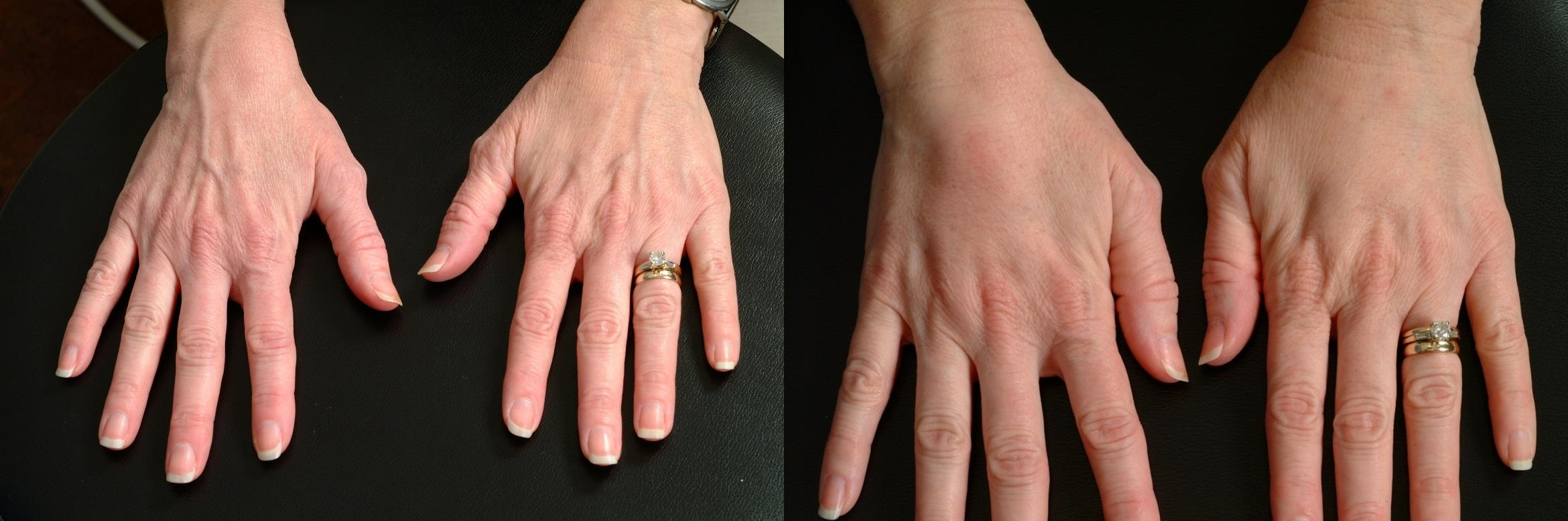 Hand Rejuvenation Case 631 Before & After Back | Louisville, KY | CaloSpa® Rejuvenation Center