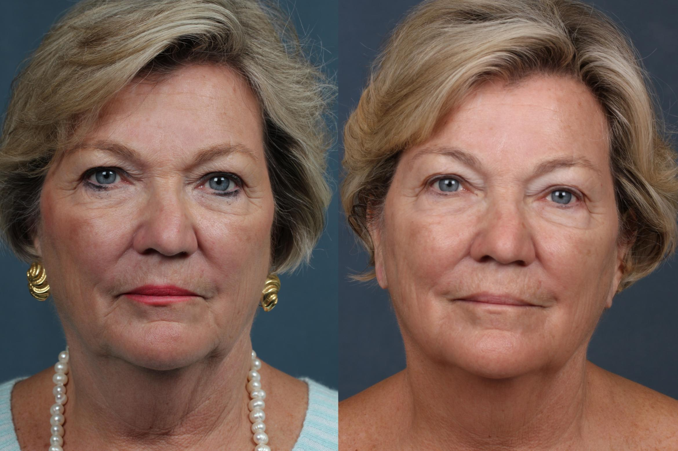 INFINI Case 687 Before & After Front | Louisville & Lexington, KY | CaloAesthetics® Plastic Surgery Center