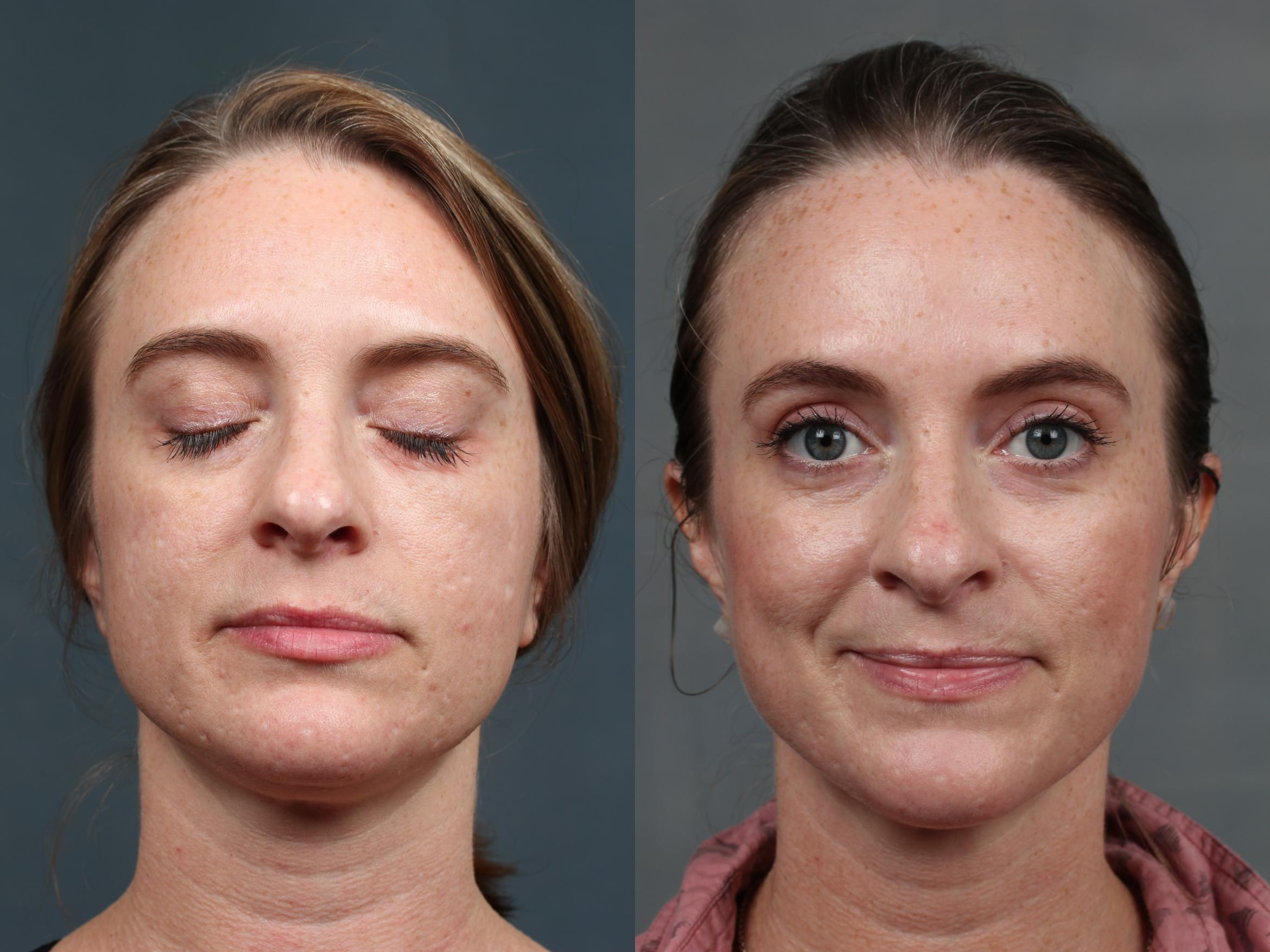 INFINI Case 696 Before & After Front | Louisville & Lexington, KY | CaloAesthetics® Plastic Surgery Center