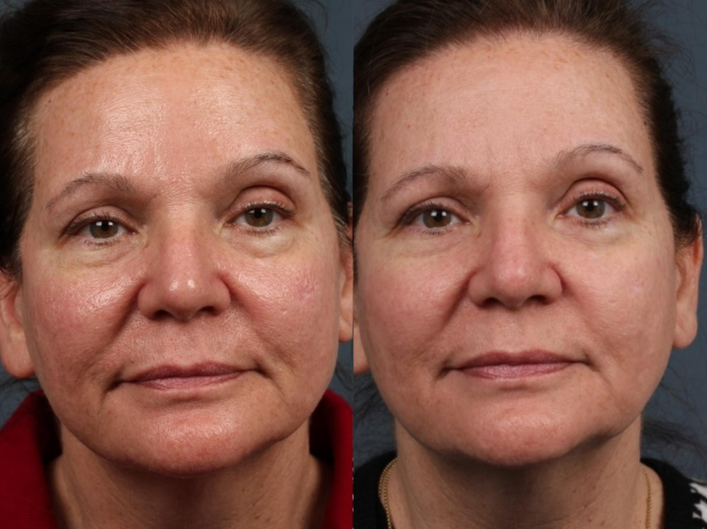 Laser Genesis Treatment Case 684 Before & After Front | Louisville, KY | CaloAesthetics® Plastic Surgery Center