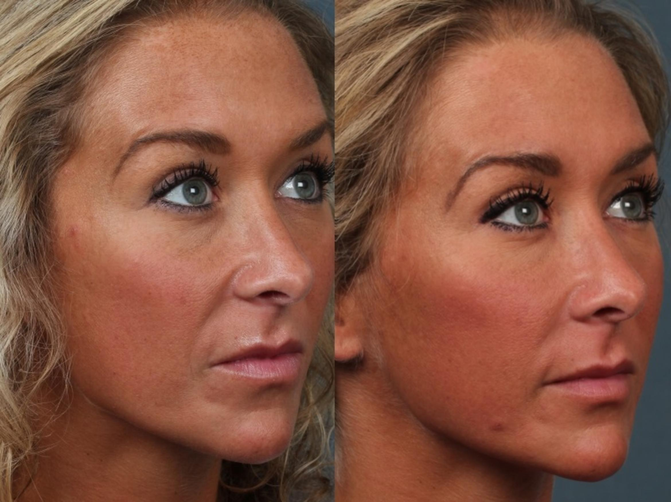 Laser Genesis Treatment Case 690 Before & After Right Oblique | Louisville, KY | CaloAesthetics® Plastic Surgery Center