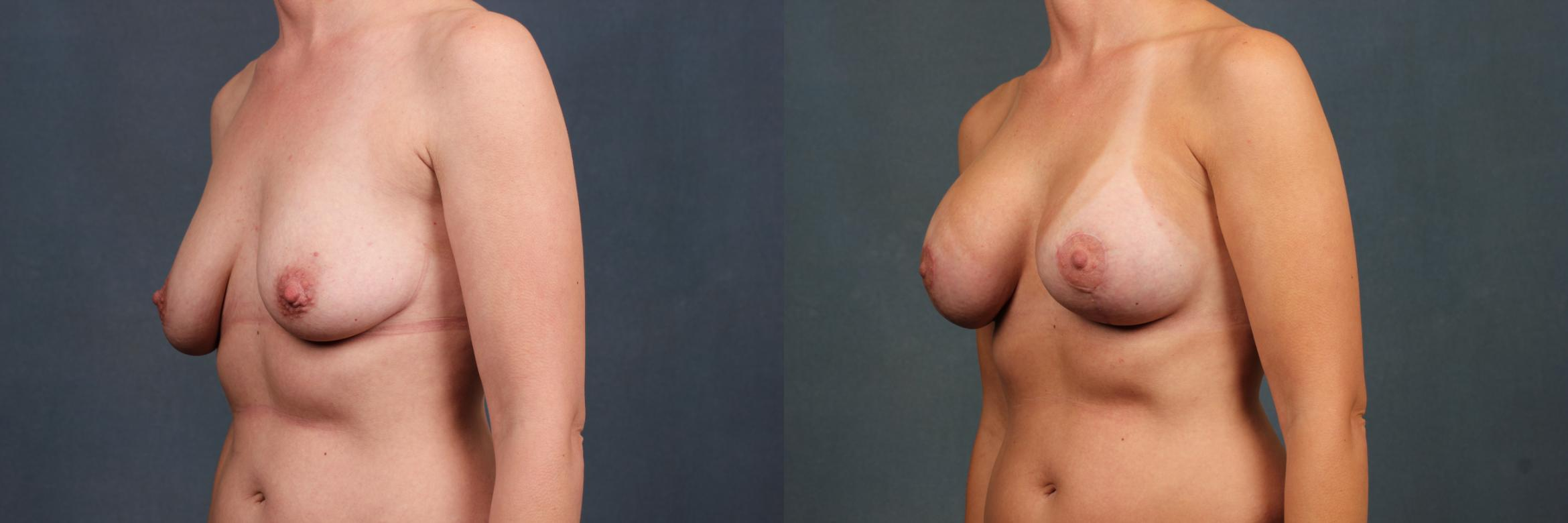 Lift Case 427 Before & After View #2 | Louisville, KY | CaloAesthetics® Plastic Surgery Center