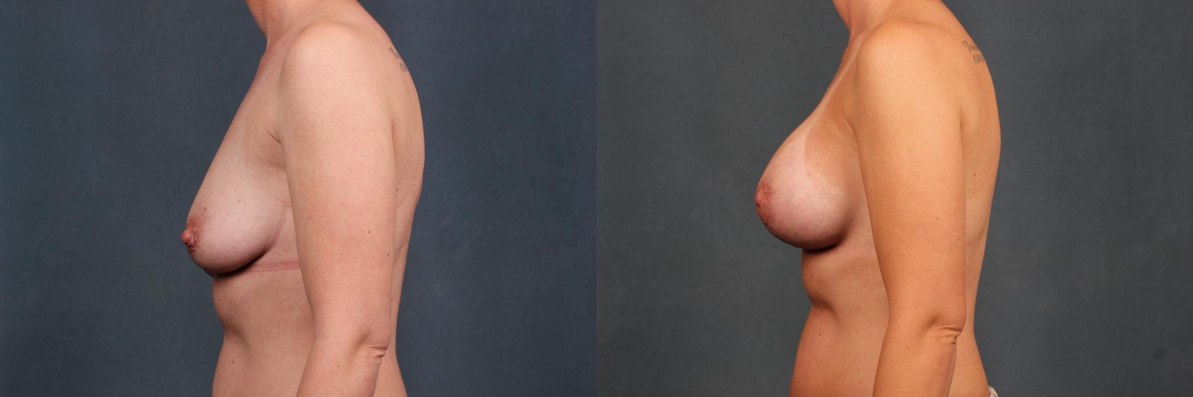 Lift Case 427 Before & After View #3 | Louisville, KY | CaloAesthetics® Plastic Surgery Center