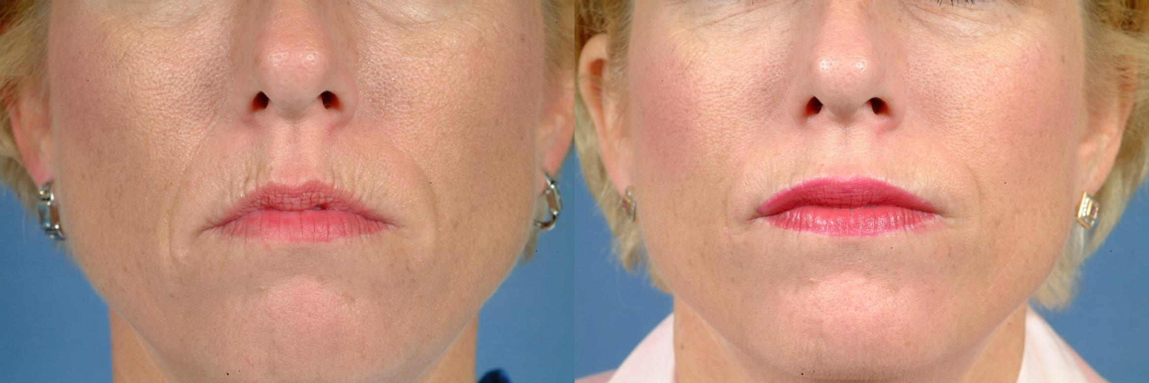 Lip Injections Case 626 Before & After Front | Louisville & Lexington, KY | CaloAesthetics® Plastic Surgery Center