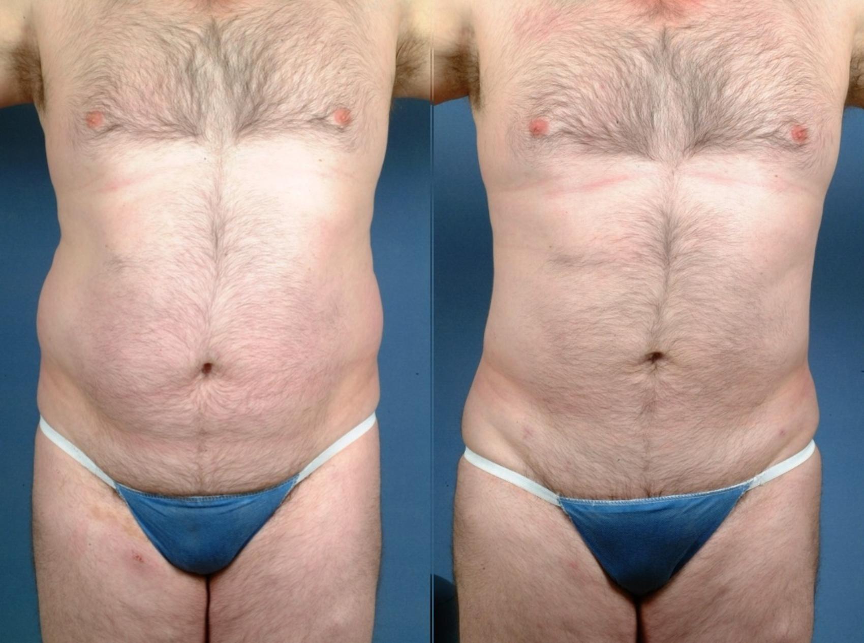 Liposuction Before After Photo Gallery Louisville Ky Caloaesthetics Plastic Surgery Center
